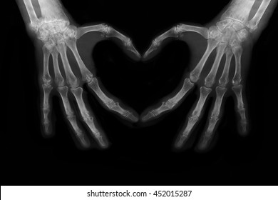 Bones of hands making the sign of love