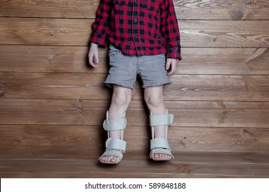 Boot child's walker. Foot Braces, Foot Compression Sleeve. Ankle Brace - Aircast Flat Foot PTTD Brace. Rehabilitation at home. Valgus deformity of legs. orthotics measurment.