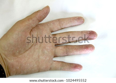 Both Hands Moulting Symptoms Hand Stripping Stock Photo (Edit Now