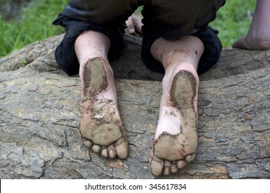 Bottom of Child's Muddy Feet Kneeling on a Log