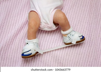 Bottom half of a newborn baby wearing orthopedic shoes connected by a plastic bar to correct for a club foot.  They are fastened with velcro for ease of use.