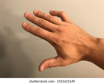 Boutonniere deformity on pinky finger