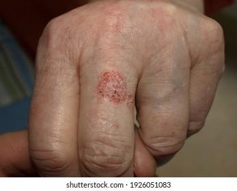 Bowen is a type of dermatologist