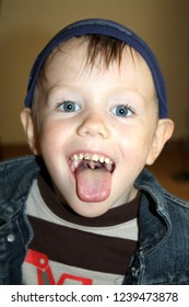 A boy with bulging ears, laughing, emotions,