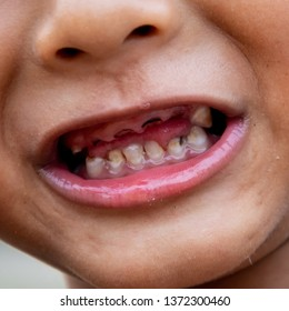 Boy or children have problem with teeth about caries. decayed tooth problem.