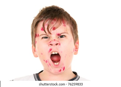 Boy is ill with  chicken pox on  white background