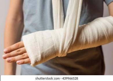 Boy keeps broken arm in gypsum, plaster arm, accident at home , injury, trauma concept