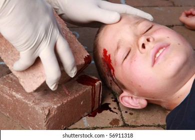 A boy lying down with blood on his head from an injury and helping hands with gloves nearby.