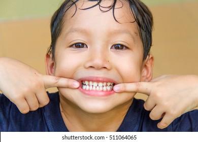 a boyshow teeth