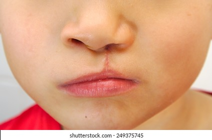 Boy showing a unilateral cleft lip repaired
