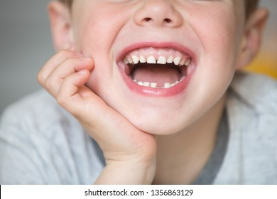 The boy smiles and shows that his first tooth fell out. Close-up face and jaw. Teeth change in childhood
