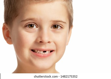 A boy without a front tooth smiles. Close-up. Isolated over white background.