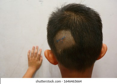 a boy with a wound on his head, the scar has been neatly sewn by a doctor and has been completely covered, the wound occurred because it hit the wall while playing in the room.