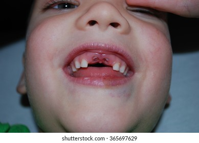 Boy's face without milk dropped two front teeth.