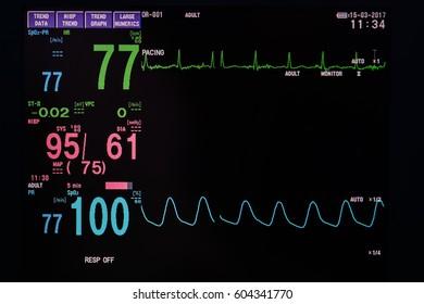 BP monitor in hospital
