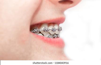 Braces and brackets on teeth, smile healthy even teeth, stamotology of medecine alignment of teeth orthodontist