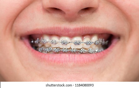 Braces and brackets on teeth, smile healthy even teeth, stamotology of medecine alignment of teeth orthodontist