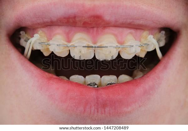 Braces Elastic Bands On Girls Teeth Stock Photo Edit Now 1447208489