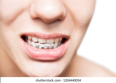 The braces on the lower jaw are close, it is visible that teeth grow crooked and need braces to align their teeth. Braces have already been removed from the upper jaw because the teeth are leveled