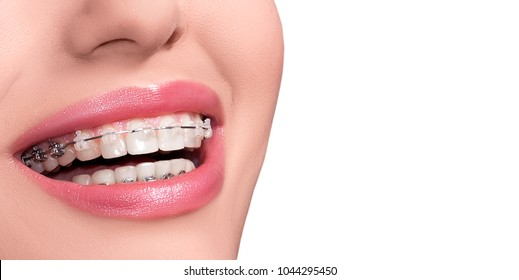 Braces on Teeth. Dental Braces Smile. Orthodontic Treatment. Closeup Smiling Face with Braces. Isolated on White Background.