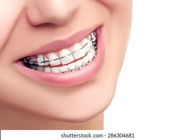 Braces. Orthodontic Treatment. Dental Care Concept. Beautiful Woman Healthy Smile close up. Closeup Ceramic and Metal Brackets on Teeth. Beautiful Female Smile with Braces.