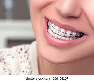 Braces. Orthodontic Treatment. Dental care Concept. Beautiful Woman healthy smile close up. Closeup Ceramic Braces on Teeth. Beautiful Female Smile with Braces.