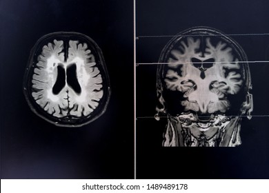 Brain atrophy for education and diagnostic