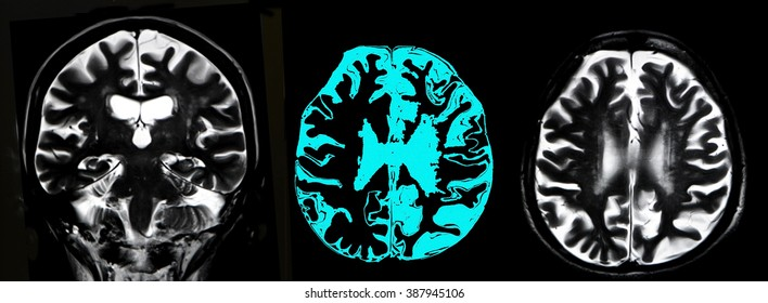 brain atrophy, MRI