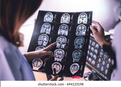 brain atrophy on MRI of Dementia patient