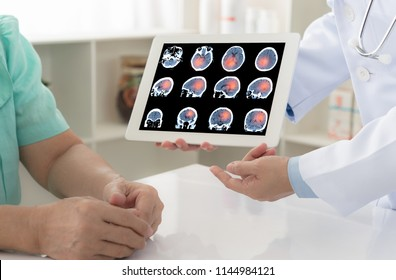brain cencer or stoke. doctor explaining results check up of brain x-ray scan on digital tablet screen to patient.