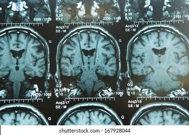 Brain Electro-stimulation
