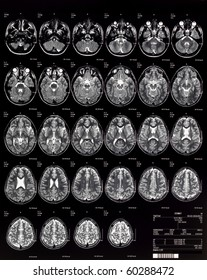 Brain MRI children 10 years