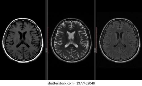 Brain MRI Scan (Magnetic Resonance) High Resolution