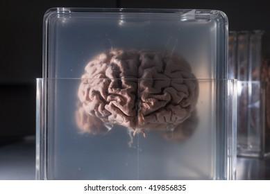Brain samples preserved in plastic slides, coronal section.