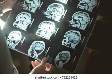brain scan for Dementia