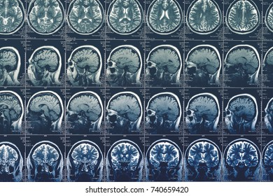 Brain scan, MRI or X-Ray or magnetic resonance image of head. Neurology tomography concept, toned