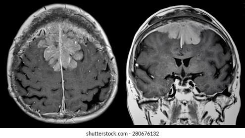 Brain tumor, MRI