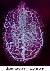 Brain veins, MR venography image, in blue and purple