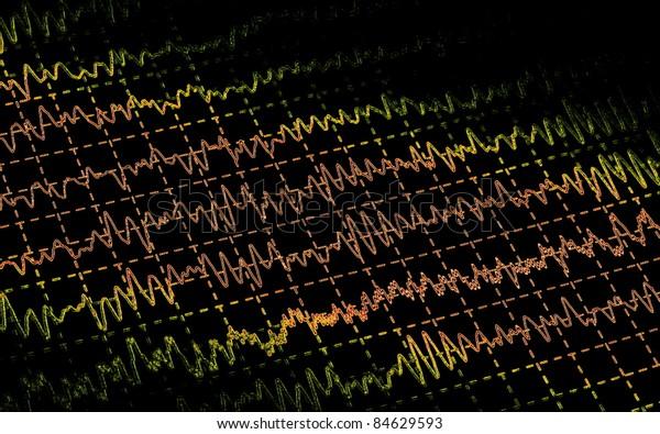 Brain wave on electroencephalogram EEG for epilepsy