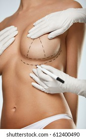 Breast Augmentation. Closeup Beautician Hands In Gloves Drawing Surgical Lines On Beautiful Woman Breast. Sexy Female Body With Black Marks On Breasts Before Plastic Surgery Operation. High Resolution