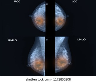 breast cancer images from checkup mammogram of women patient.