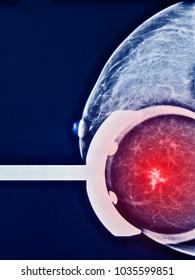 Breast cancer, mammogram, screening