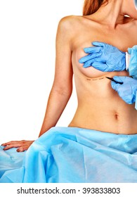 Breast cancer surgery. Doctor makes dotted line on unrecognizable female body.