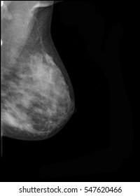 breast cancer xray on blackbackground