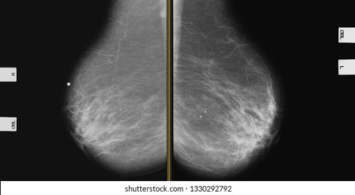 Breast Mammography MLO (High Resolution)