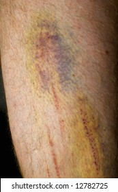 Bright colored bruise and graze on hairy leg after accident