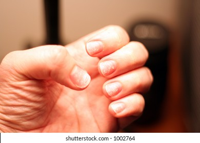 brittle damaged nails