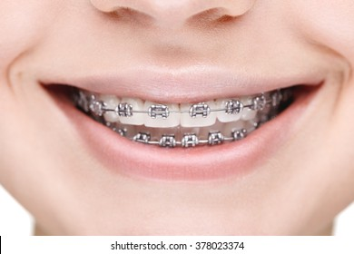 Broad smile girl with metal braces. Closeup