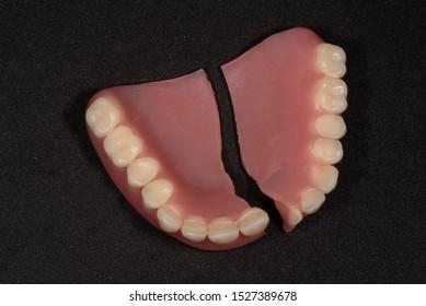 Broken acrylic upper single denture