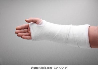 broken arm bone in cast